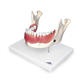 DENTAL DISEASE MODEL